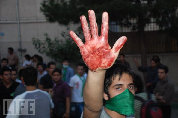 As the World Watches, A Protester Shows His Hand